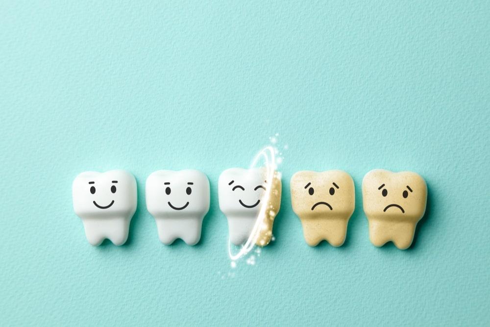 La jaunissement des dents est souvent réversible