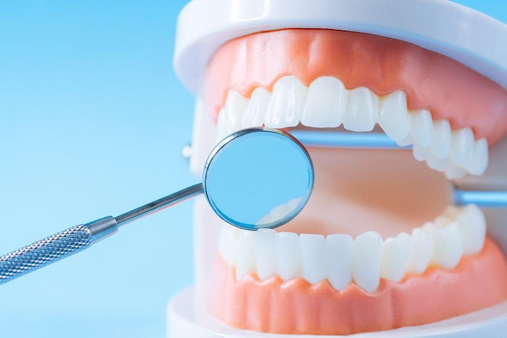 Les maladies des gencives sur un modèle de bouche