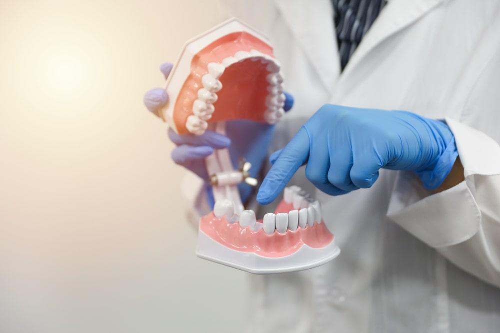 Les solutions pour les dents manquantes